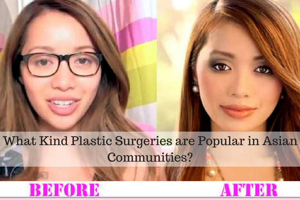 What Kind Plastic Surgeries are Popular in Asian Communities-